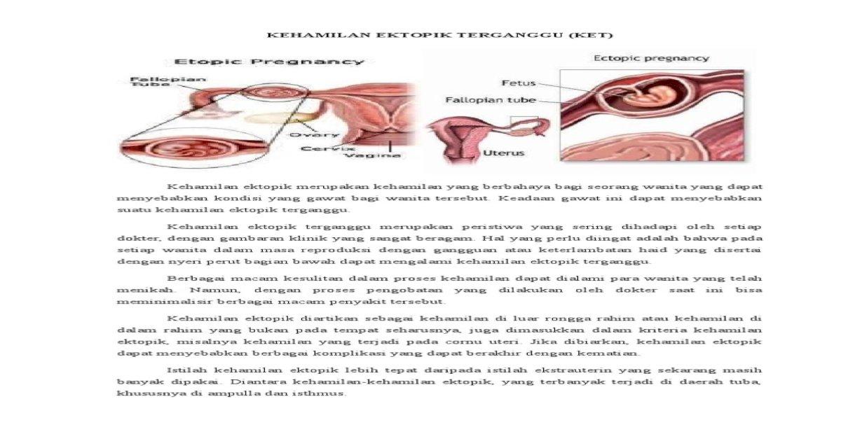 Teori Kehamilan Ektopik Terganggu